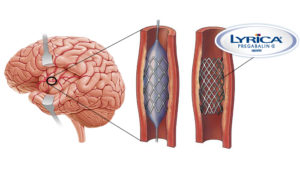 Lyrica-Eluting Stent for End Stage Fibromyalgia Sufferers