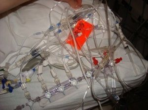 It Took Over 3 Years, But ICU Team Finally Finishes Untangling All Those Lines