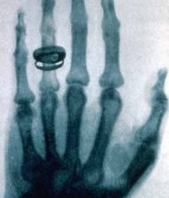 This Day in Medical History: Roentgen Invents Clinical Correlation