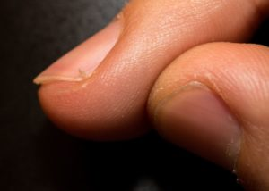 For Hangnails, The American Academy of Dermatology Now Recommends Hand Amputation