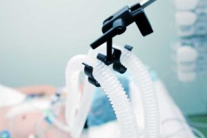 Ventilator More Effective When Connected to Endotracheal Tube