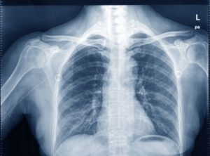 Inappropriate: Radiologists Keeping Talking about Over/Underpenetration